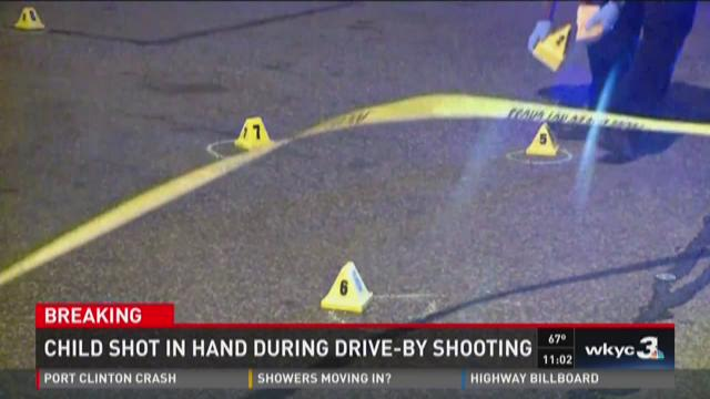 Child shot in hand during a drive-by shooting